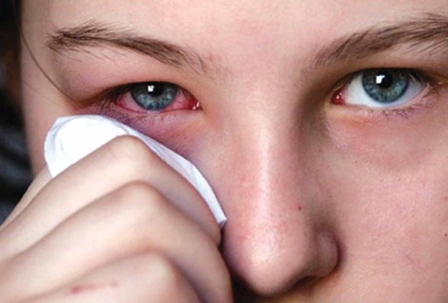 KONJUNKTIVITIS juga boleh disebabkan alahan terhadap bahan kimia seperti produk kosmetik, minyak wangi dan penggunaan kanta lekap. GAMBAR hiasan.