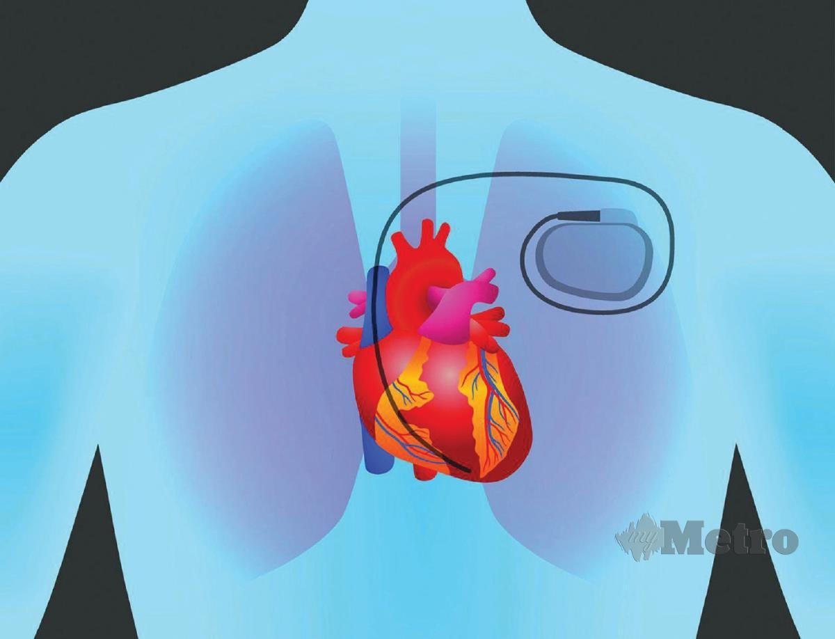PERENTAK jantung dipasang apabila degupan jantung seseorang itu terlalu perlahan.
