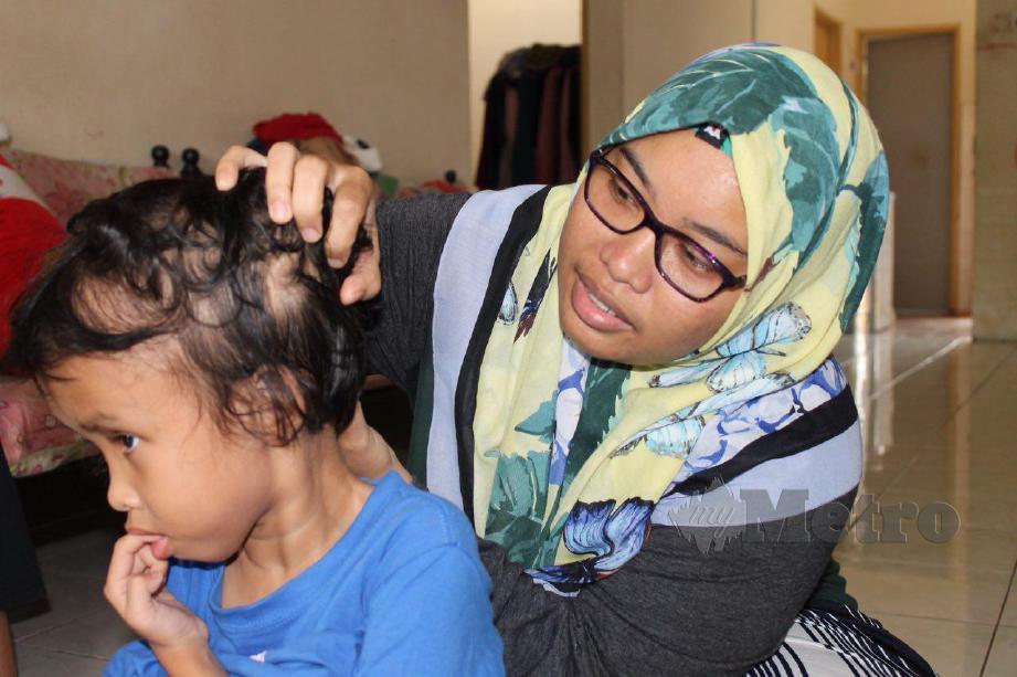 NURUL Wahida menunjukkan lokasi tiub yang dipasang pada kepala Nur Fatihah. FOTO Mohd Amin Jalil