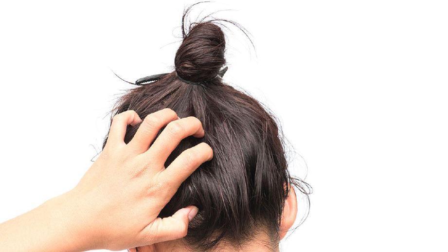 WANITA berhijab sering mengalami kegatalan akibat rambut bertutup dalam tempoh lama.