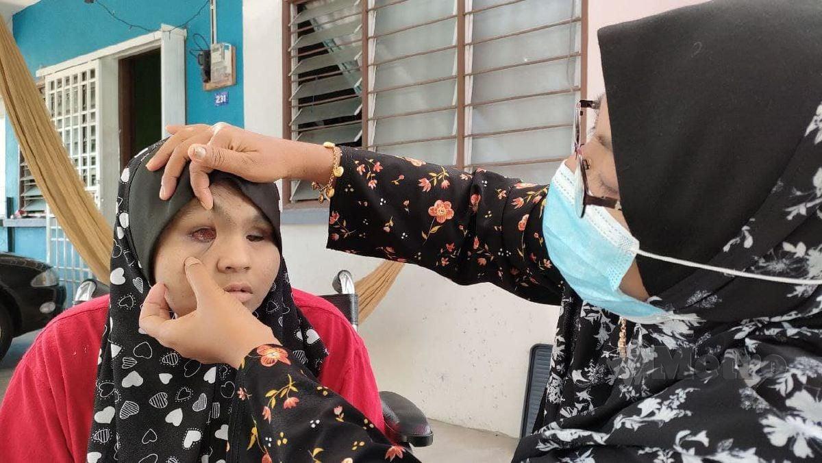 HASSILAWATI menunjukkan bebola mata anaknya yang terpaksa dibuang akibat kanser mata. FOTO Zuliaty Zulkiffli