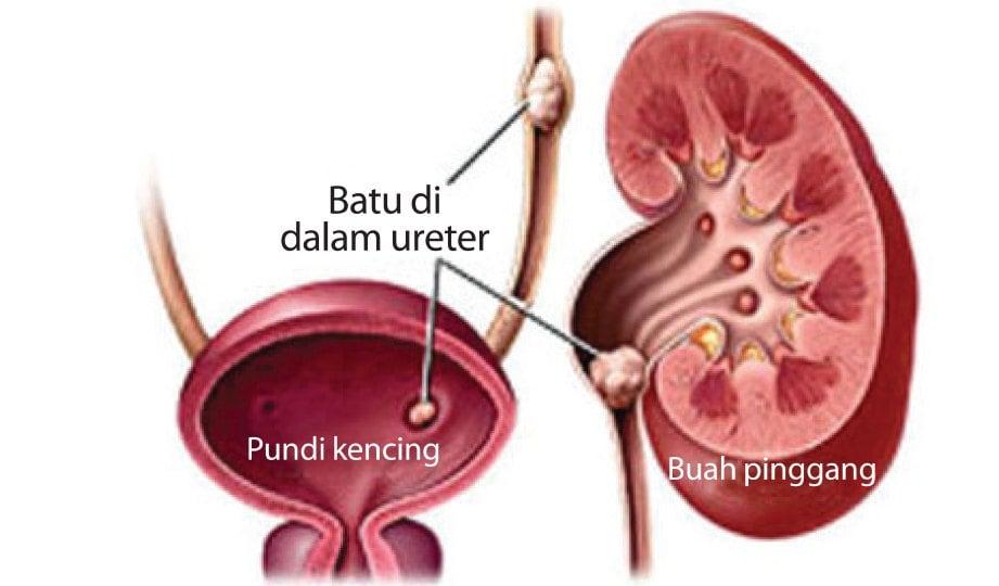 BATU karang boleh terbentuk di dalam buah pinggang, ureter dan pundi kencing.