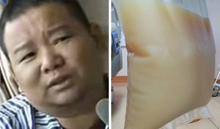 ZHAO. Gambar kanan, beg plastik  mengandungi plasma darah Zhao yang berwarna putih seperti susu. - Agensi