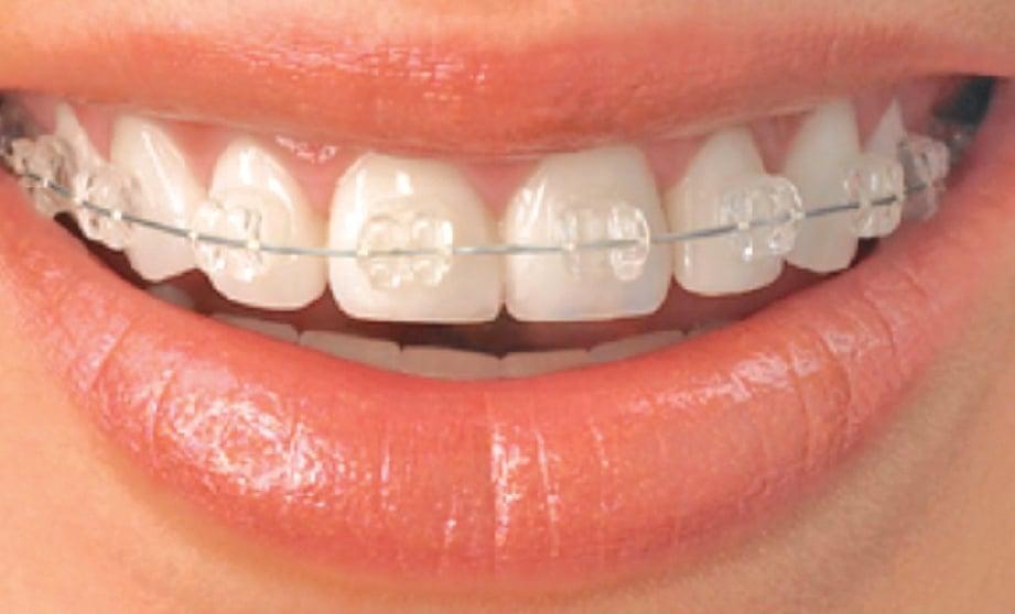 d5221047a71 Rawatan ortodontik dapatkan gigi cantik | Harian Metro
