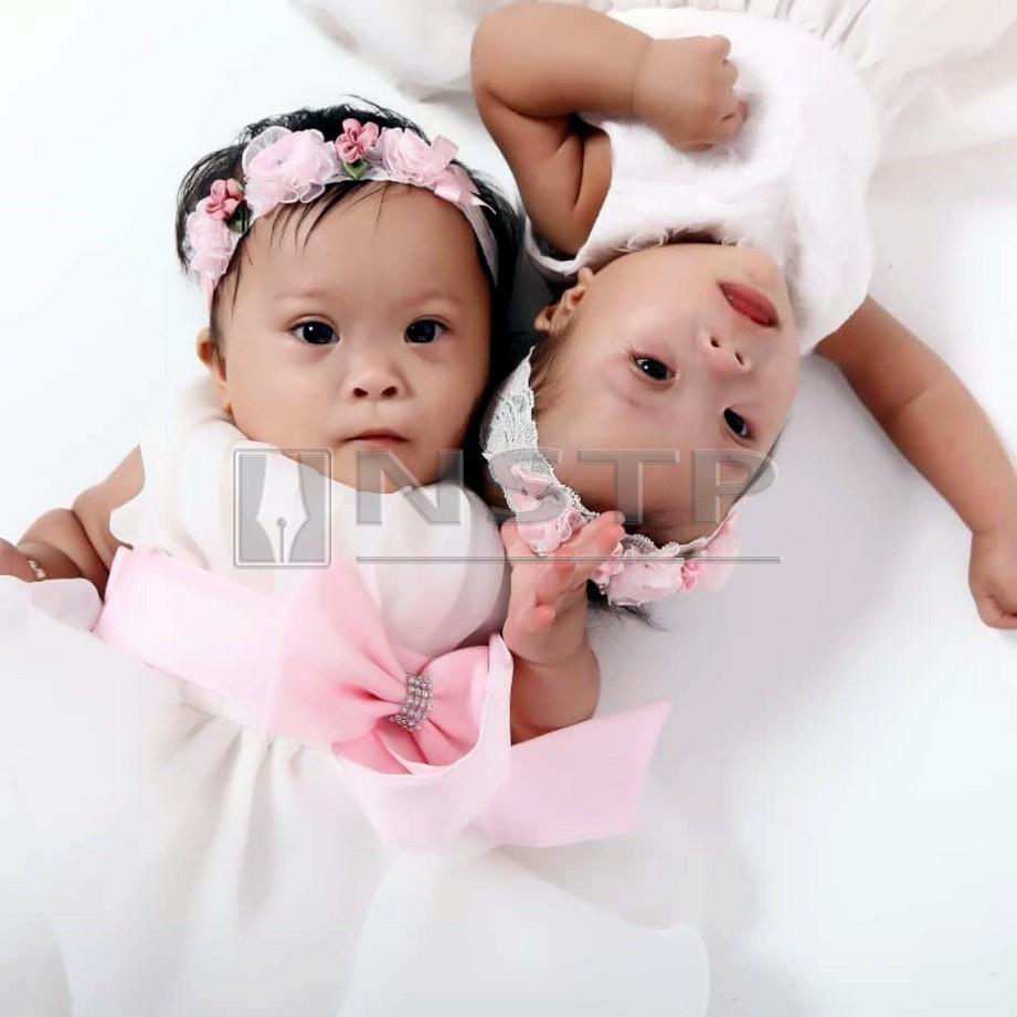 SEPASANG kembar sindrom Down, Orked  dan Dahlia  kini dijaga dua keluarga selepas ibu kandung mereka tidak mampu membesarkan dua anak ini.