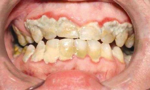 SKURVI menyebabkan gigi rosak.