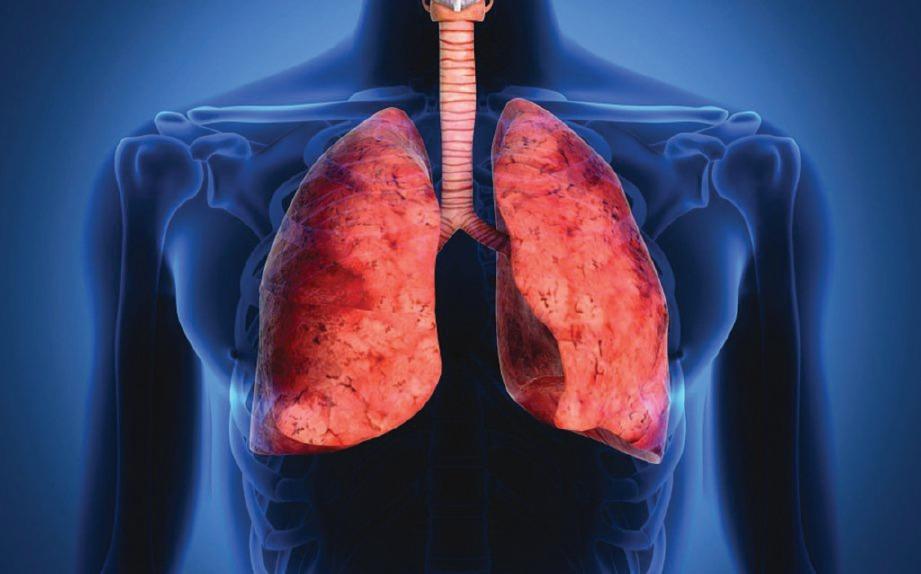 PENYAKIT paru-paru berparut boleh menyebabkan batuk berdarah.