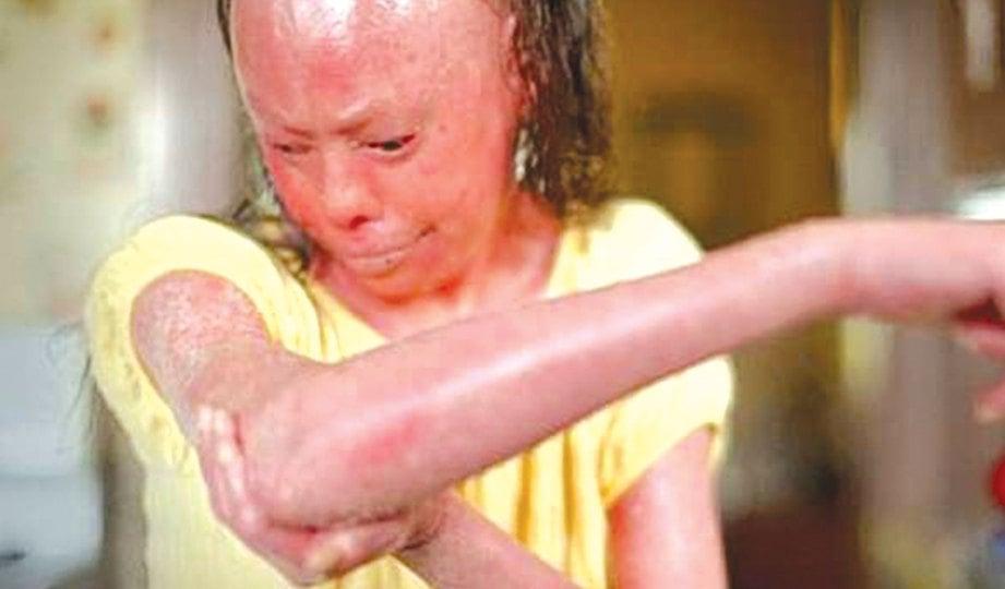 PESAKIT menderita iktiosis harlequin yang menjejaskan rupa paras dan tubuh.