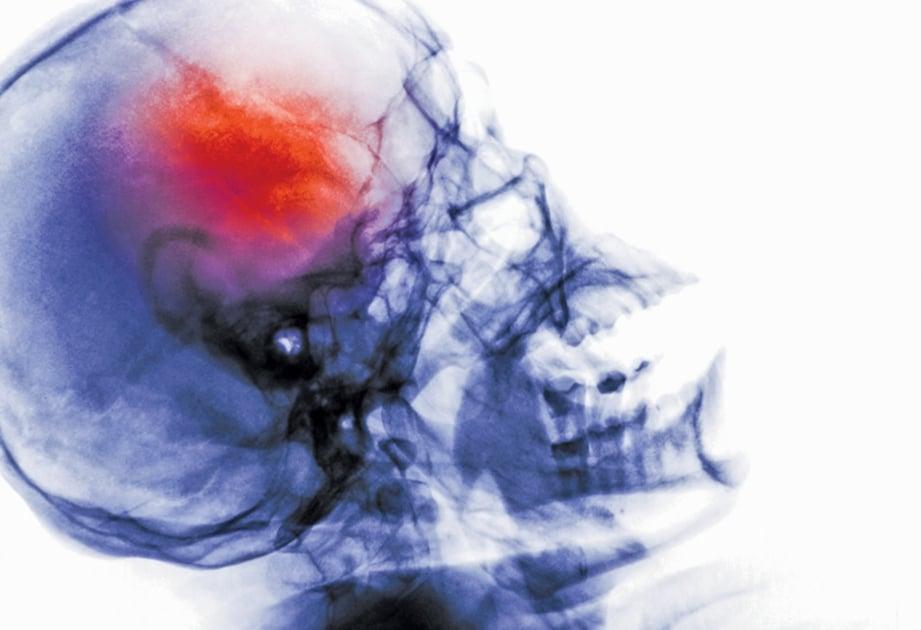 TEKNIK trombektomi endovaskular keluarkan darah beku penyebab angin ahmar.