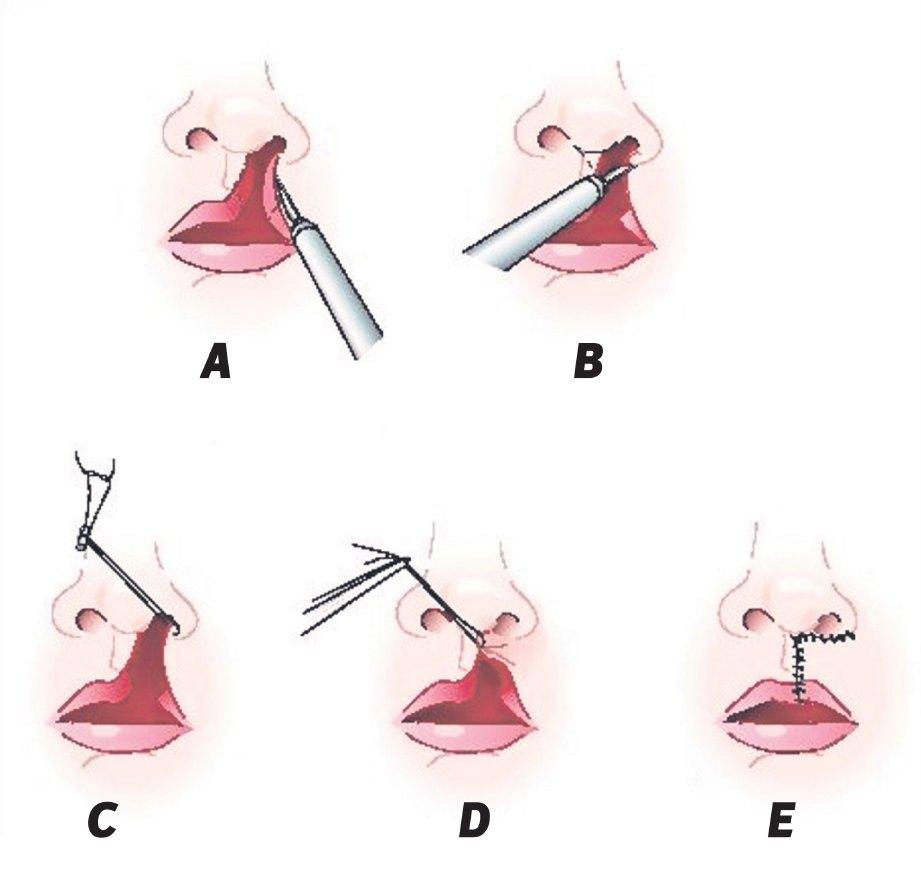 PEMULIHAN bibir menerusi pembedahan.