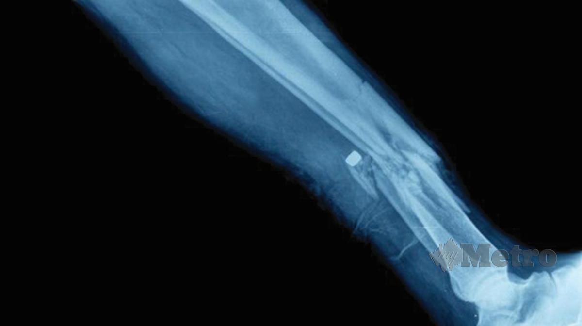 IMEJ sinar-X menunjukkan tulang patah.