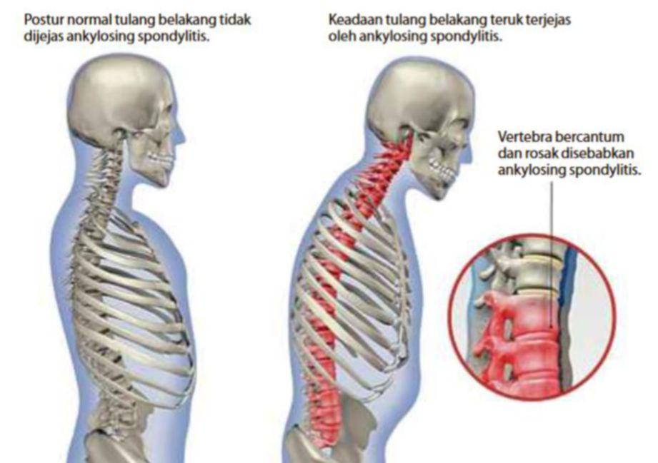 PERBANDINGAN tulang belakang sihat dan tulang belakang bercantum akibat ankylosing spondylitis.