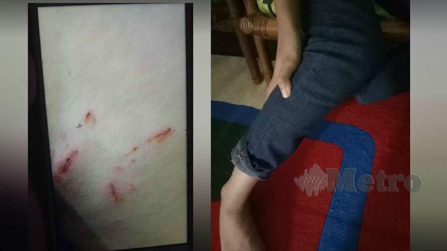 UMAIRAH terpaksa mendapatkan rawatan selepas pahanya digigit tikus.