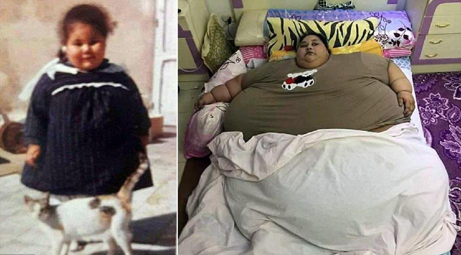 Eman Ahmed Abd El Aty ketika kanak-kanak dan sebelum menjalani pembedahan. - Foto Daily Mail