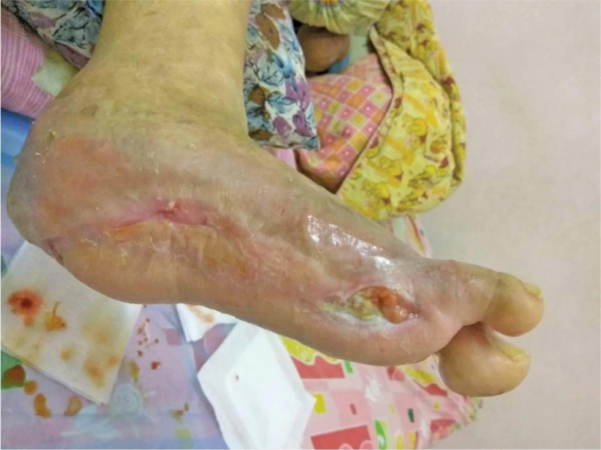 PERTUMBUHAN tisu baharu menutupi luka.